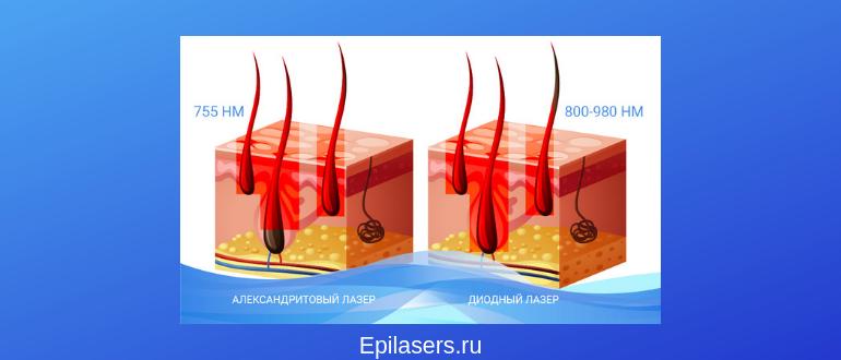 Длина волны диодного и александритового лазеров