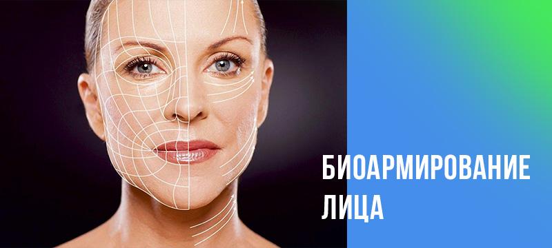 Биоармирование лица