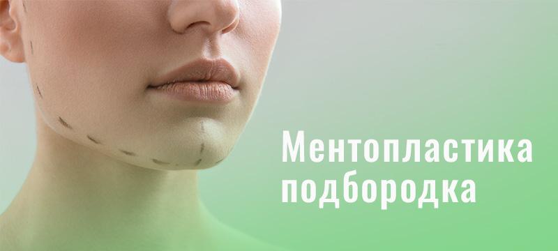 Ментопластика подбородка