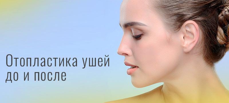 Отопластика ушей – до и после