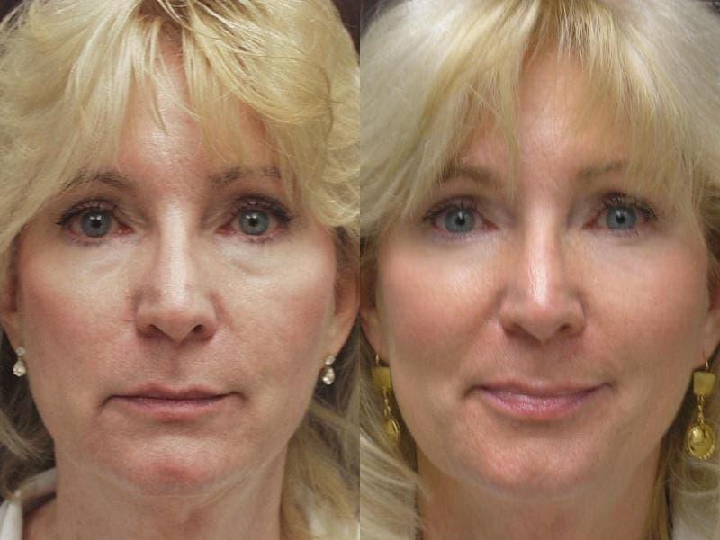 bioarmirovanie-lica